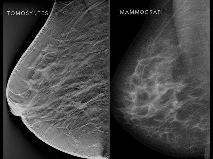 tomosynthesis vs digital mammography Architectural distortion on digital 2d versus tomosynthesis mammography rchitectural distortion, which refers to distortion of the breast parenchyma with no definite mass visible, can have a malignant or benign cause [1-4.