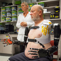 first man with two mind controlled prosthetic limbs